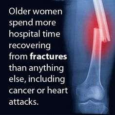 Osteoporosis Prevention Can Start Well Before Menopause, Experts Say