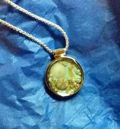 Msk kidney disease on pinterest kidney stones for Jewelry made from kidney stones