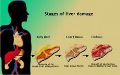 The most crucial liver enzymes along with what they actually do and as well what they specify within a examination. http://liverenzymes.co/
