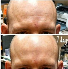 Look at what Nerium AD can do in just 7 days!