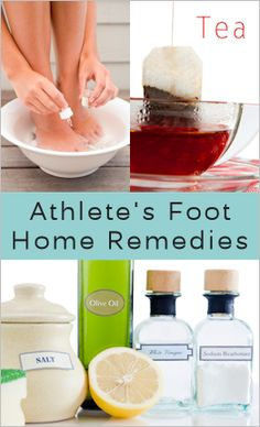 Athlete's Foot Home Remedies