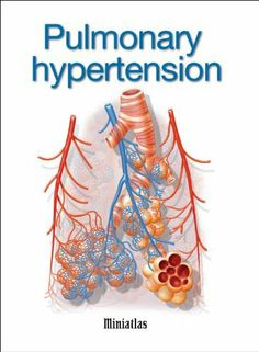 Image Result For Image Result For Pulmonary Arterial Hypertension Symptoms Causes Diagnosis