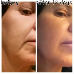 I was skeptical - until I took the after photo 12 days later. WOW! www.wrinkleresults.nerium.com