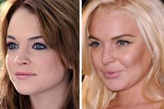 taylor swift, lindsey lohan, lindsay lohan, plastic surgery, first place, plastic surgeri