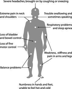 Chiari Symptoms Image