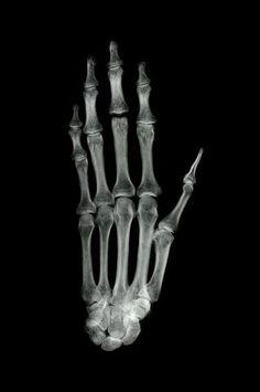 Ancient Egyptian mummy hand X-ray Australian museum