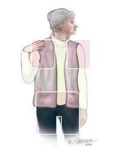 Polymyalgia Rheumatica  http://www.osmsgb.com/Education.aspx  #polymyalgia #rheumatica #stiffness #giantcellarthritis