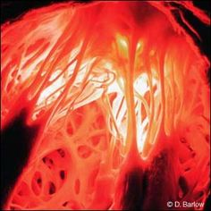 Human heart - Dr David Barlow has won the prestigious Lennart Nilsson award for his spectacular images of the human body. This image, of one of the chambers of the human heart, shows clearly the detailed structure of muscle and valve. The prize, awarded each year, is given for the best visual representation of science, medicine, biology and technology.