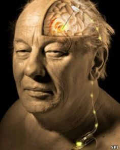 Marcapasos cerebral contra el Alzheimer | Cachicha.com