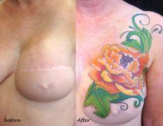 Mastectomy Tattoos Inspiration Mastectomy scar cover-up.