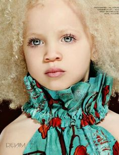 Ava Edney, a stunning african-american kid with albinism.