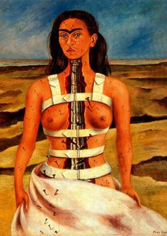 Frida Kahlo / depiction of her after the bus accident where a pole went thru her vagina and exited thru her upper torso (she was put in a brace, stapled back together, & hospitalized for a lengthy period shown here) thereby creating her inability to have children with husband/muralist Diego Rivera. Frida blamed herself, started collecting animals/pets to fill the void. Even though Diego was routinely promiscuous, Frida was most hurt/scarred by Diego's affair with her sister.