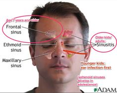 Viewing your sinuses and how they open up as you age. Note the red line on his left is supposed to represent the eustachian tube going from his nasopharynx to his middle ear