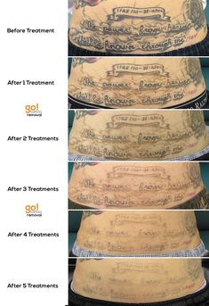 5 laser tattoo removal treatments and we 39 re more than for Qualifications for tattoo removal