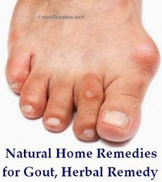 how to get rid of gout naturally