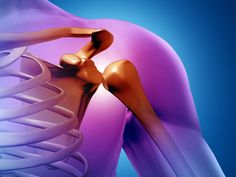The importance of getting the right treatment for shoulder injuries. - http://www.zacharassociates.com/accident-injuries/shoulder-injuries/