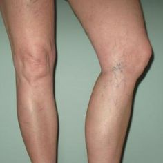 Herbal Remedies For Spider Veins - Treatments & Cure For Spider Veins | Home Remedies, Natural Remedy