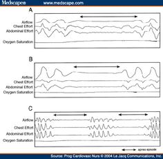 Central Sleep Apnea | Sleep-Disordered Breathing and the Association With Cardiovascular ...