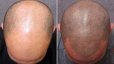 A genius way to hide that receding hairline....a tattoo!