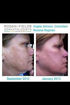 With Rodan + fields this can be your results too!  Message me to learn more- Lisa J. Davis 239-580-8831 and join me in this ground floor opportunity!  B.Y.O.B. (Be Your Own Boss) lisaj.davis@me.com