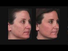 Melasma treatment on pinterest melasma cures hyperpigmentation