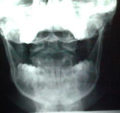 "When the words ""nice odontoid"" come out of your mouth, you are an xray tech."