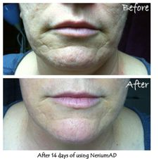 After using Nerium AD for 14 days. Photos came from Nerium International.