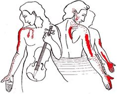 """Scalene-Pain: """"Thoracic outlet"""" and """"carpal tunnel"""" syndromes; chest, arm, and upper back pain. Scalenes contribute to severe tension headache and are one of the leading causes of """"carpal tunnel syndrome."""" On the list of a half-dozen possible causes, the carpal tunnel itself is dead last. This is one of the reasons why carpal tunnel surgery is so ineffective. Check before you cut!"""
