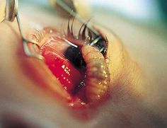Botfly larva being removed from the eye. It's a favorite spot for botflies to lay their eggs.