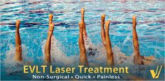 In the past, varicose veins were treated with a surgical procedure called vein stripping; where the vein was completely removed from the leg. Today EVLT is used to deliver laser energy into the malfunctioning vein to seal it closed. It's precise, painless, and quick. Are you wondering if you are a candidate for Endovenous Laser Treatment (EVLT)? Give us a call to schedule a consultation appointment and find out! 888-76-VEINS