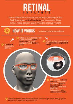 Retinal implants eye care, eye educ, eyecar busi