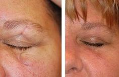 Scar Treatment - Remove Scars Through Herbal Ways