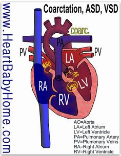 #Heart defect: #coarctation of the #aorta with sub-aortic #stenosis, #atrial #septal defect, #ventricular septal defect