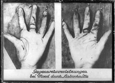 Defense wounds to hand from antique forensic textbook (Forensicmed)