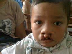Celebrity with Cleft Lip