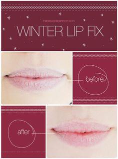 Dry Winter Lip Fix!