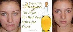 Apple Cider Vinegar For Acne - The Best Kept Skin Care Secret