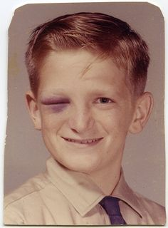 Black eye for class photo day