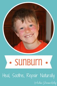 So You Say You Got a Sunburn :: via Kitchen Stewardship. How to heal, soothe and repair your damaged skin after a sunburn – naturally.