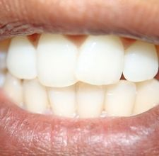 Use hydrogen peroxide to whiten your teeth at home