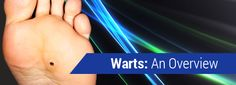 Warts-An-Overview