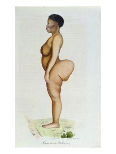 Saartjie Baartman (1790-1815) was known as The Hottentot Venus and was exhibited in carnival-like shows across Britain that sensationalized her unusual anatomy: she had steatopygia, an over-development of fatty tissue around the buttocks. After her death, her remains were preserved and exhibited in Paris until 1985. Her remains were finally returned to South Africa at the request of Nelson Mandela and received a proper burial in 2002.