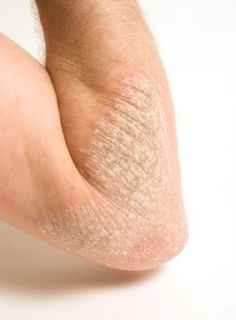 Psoriasis: Causes Of The Disease