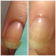 How to Fix a Broken Nail