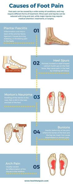 Foot pain chart: Do