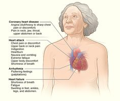 The illustration shows the major signs and symptoms of coronary heart disease.