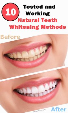 10 Tested and Working Natural Teeth Whitening Methods