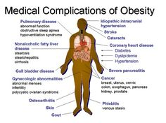 "Pinterest. ""Medical Complications of Obesity."" Web Image. 19 Sept 2013. This source provides a visual aid. I will use this chart to support the information that I present on the dangers of obesity. The detailed descriptions of the damage done to vital organs will be used to help persuade and inform my audience of the importance to act against the obesity epidemic."