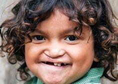 Maiquin lived with his facial deformity for three years because his parents couldn't afford the surgeries he desperately needed.   http://www.operationsmile.org.uk/testimonials/smile_show.phtml?id=43