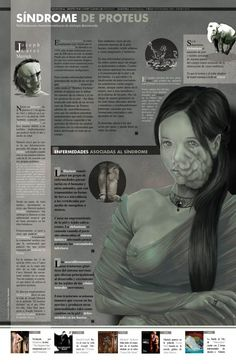 Síndrome de Proteus #infografia